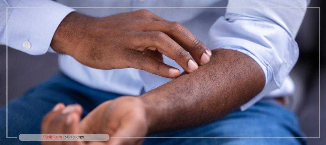 آشنایی با نشانه های حساسیت پوستی به لباس